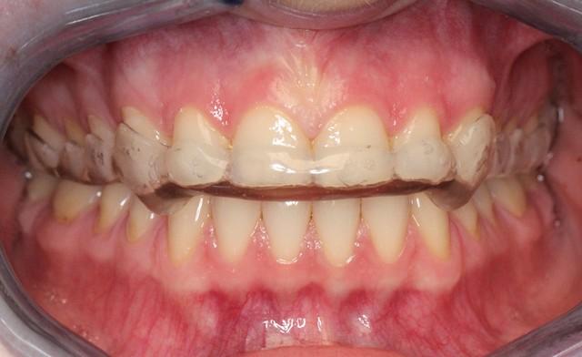 Bruksistična opornica   nočno stiskanje zob   škrtanje z zobmi   bruksizem