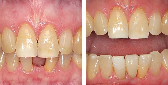 Polnokeramični Maryland mostiček v spodnjem zobnem loku
