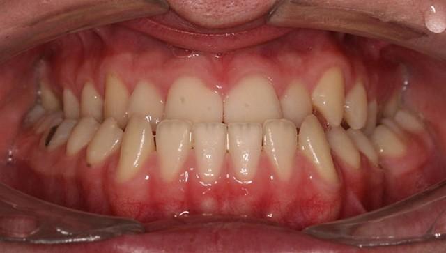 Težka skeletna nepravilnost je včasih ortodontsko nerešljiv problem. V takih primerih je potrebno sodelovanje specialista ortodonta in maksilofacialnega kirurga. Po predhodni ortodontski predpripravi se izvede kirurški premik čeljustnic in tako odpravi funkcionalne motnje (žvečenje, dihanje, govor).