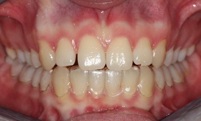 Prozorno termoplastično opornico (Clear Aligner Therapy) je na zobeh komaj opaziti.