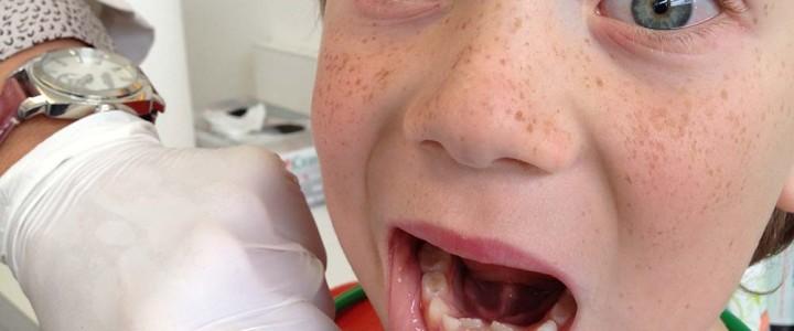 Stalni zobje izraščajo vzporedno za mlečnimi zobki