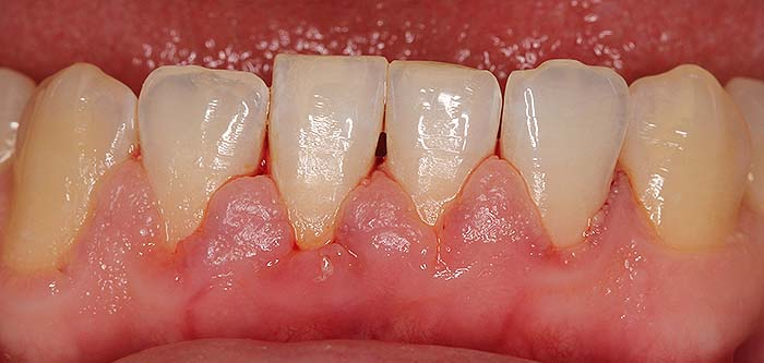 Parodontoza - vnetje obzobnih tkiv