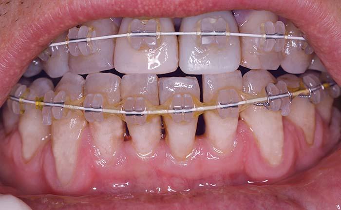 Parodontoza in ortodontske težave