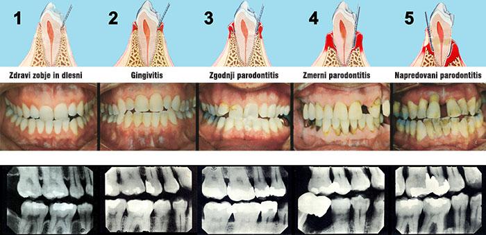 Parodontoza - stopnje bolezni obzobnih tkiv