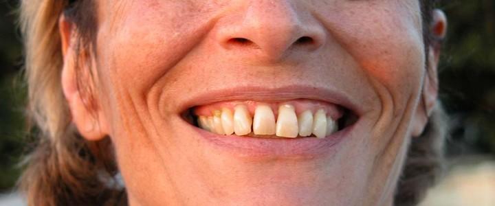 Zdravljenje parodontoze – kdaj, kako, postopek?