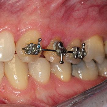 Primer: Ortodontska hitra ekstruzija