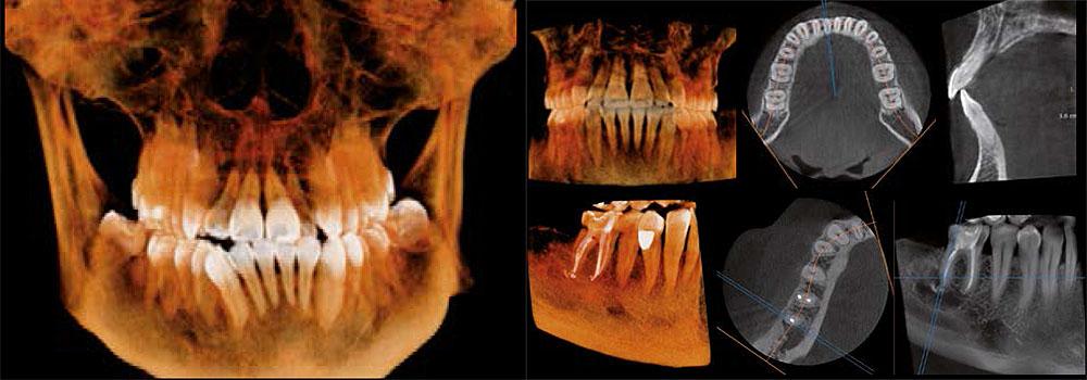 Cone Beam CT 3D rentgensko slikanje