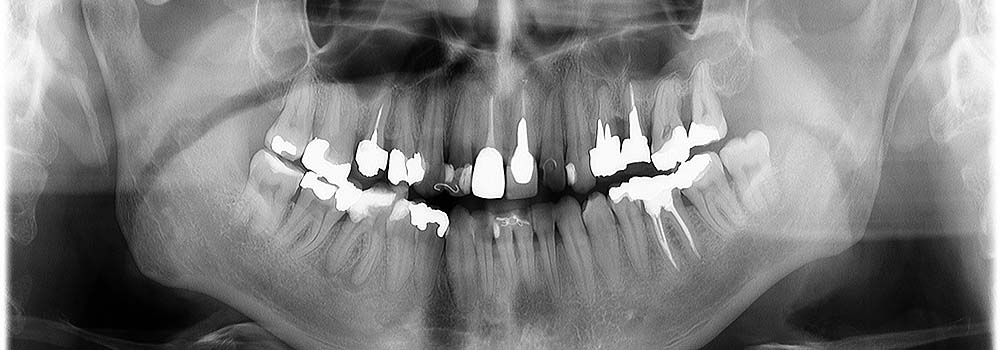 Ortopan | Panoramska rentgenska slika zob | zobni RTG