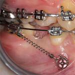 Minivijak | enostavna pomoč pri zapiranju vrzeli zaradi odsotnosti stalnih zob po ekstrakciji ali genetsko pogojene odsotnosti zob