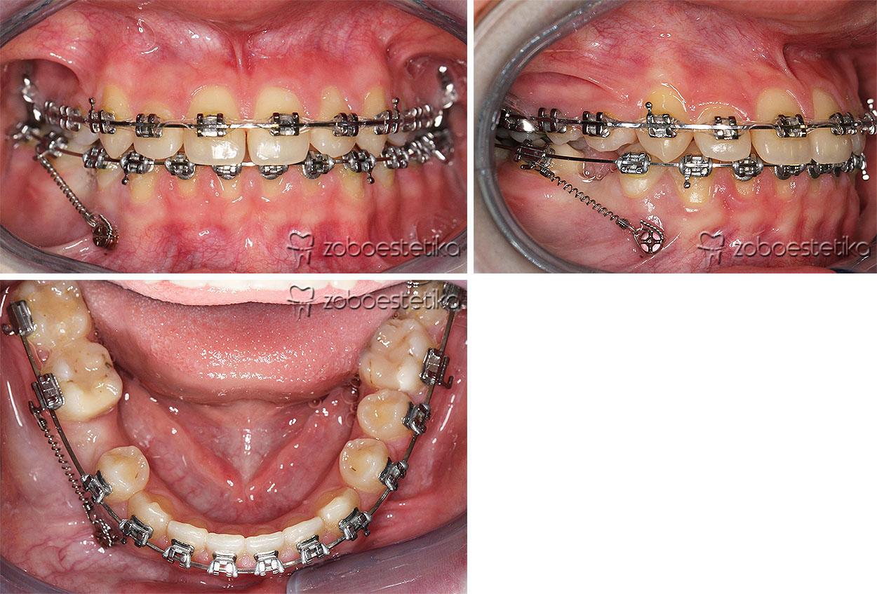 Minivijaki | enostavna pomoč pri zapiranju vrzeli zaradi odsotnosti stalnih zob po ekstrakciji ali genetsko pogojene odsotnosti zob