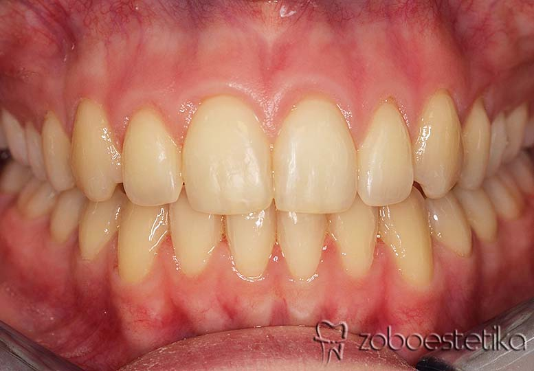 Ortodontsko zdravljenje - Potem