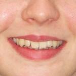 Ortodontsko zdravljenje