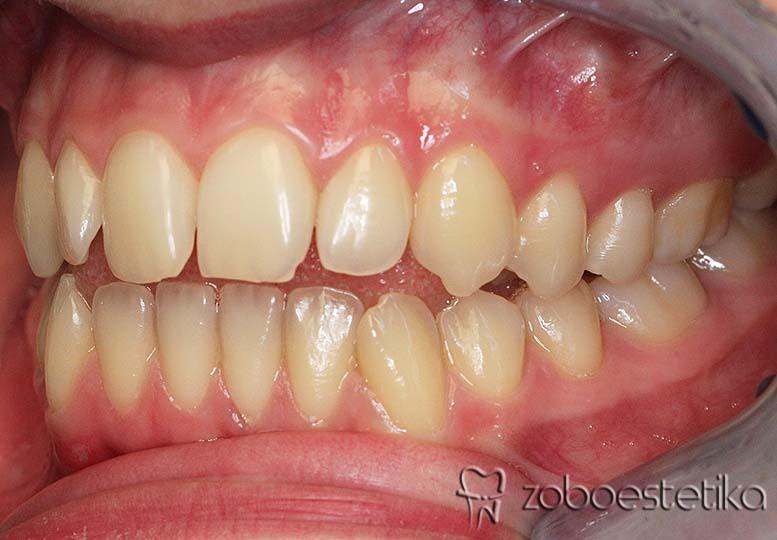 Ortodontsko zdravljenje - Prej