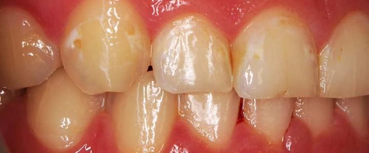 Beli madeži na zobeh po snetju zobnih nosilcev