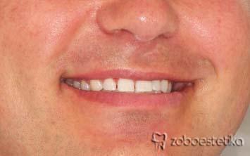 Beljenje zob z ZOOM lučko - Potem