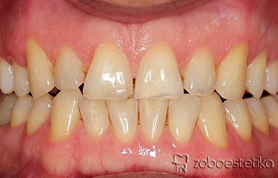 Beljenje zob z ZOOM lučko - Prej