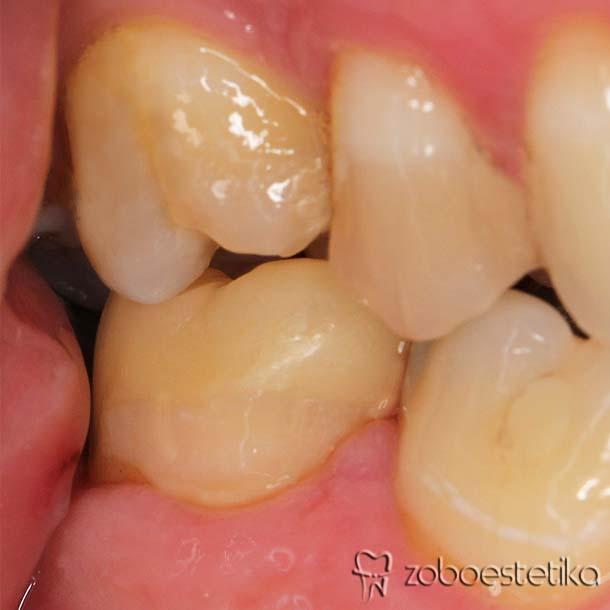 Kirurško podaljšanje klinične krone endodontsko zdravljenega zoba z odlomljeno objezično ploskvijo zobne krone pod nivojem dlesne (Fortuna Gašper, ddm, spec. oralni kirurg). Protetična dograditev zoba z endokrono (endocrown E-max).