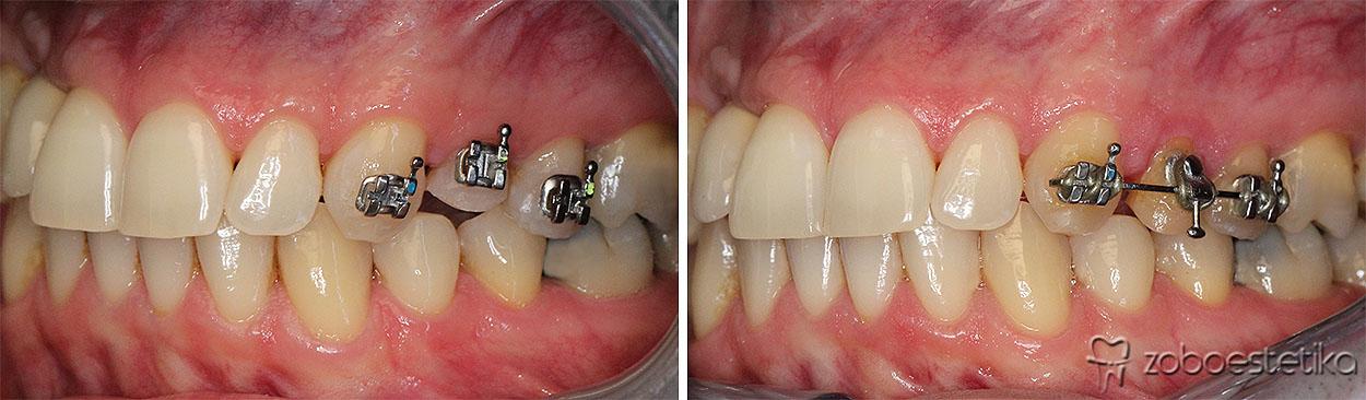 Ortodontska hitra ekstruzija   Prej in potem
