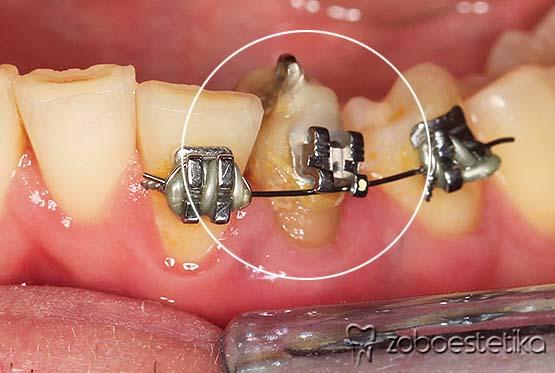 Ortodontski vlek levega spodnjega podočnika