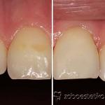 Primer: Zdravljenje zabarvanja zob