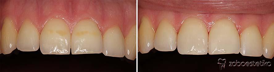 Zdravljenje zabarvanja zob