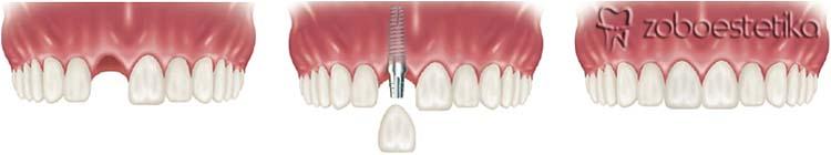 Kdaj vstavljamo implantate? | Nadomestitev posameznega zoba