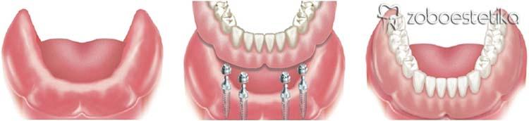 Kdaj vstavljamo implantate? | Popolna brezzobost – fiksiranje totalne snemljive proteze