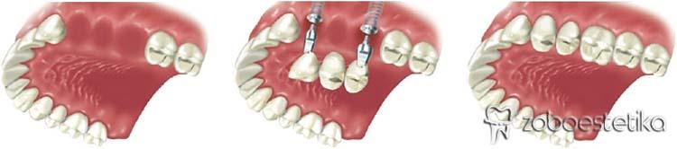 Kdaj vstavljamo implantate? | Zapolnitev vrzeli – krajša zobna vrsta
