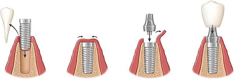Potek operacije vstavitve zobnega implantata