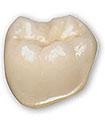 PREVLEKA (zobna krona)   fiksnoprotetični izdelek, ki v celoti obda zob