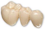 ZOBNI MOSTIČEK | fiksna zobna protetika, ki jo fiksiramo na obrušene zobe ali implantate ter ima lahko enega ali več vmesnih členov
