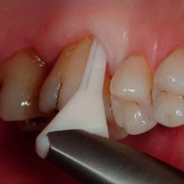 Peskanje zob | Neboleče odstranjevanje zobnih oblog z aparatom Air-Flow Handy Perio