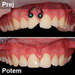 Odlomljen zob pred in po zdravljenju