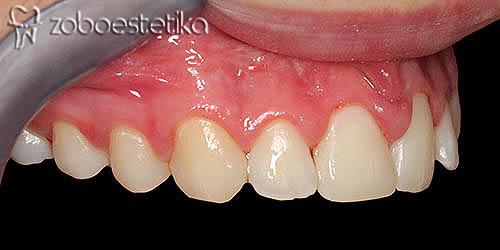 Odlomljen zob po zdravljenju