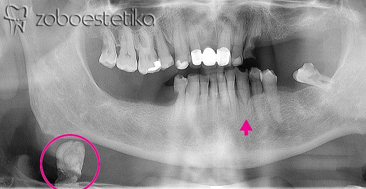 Ortopan RTG slika zob je naključno pokazala kamen v žlezi slinavki. Kot zanimivost je označena tudi spodnja trojka z dvema koreninama. | Zobni rentgen | Rentgensko slikanje zob