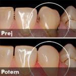Estetska restavracija poškodovanega zoba z uporabo kakovostnega materiala za izdelavo običajnih zobnih zalivk - Prej in potem