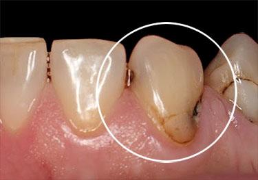 Poškodovan zob - pred estetsko restavracijo