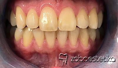 Beljenje zob z ZOOM lučko - Pred beljenjem