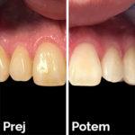 Beljenje zob z ZOOM lučko