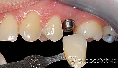 Implantat - izbira barve za zobno krono