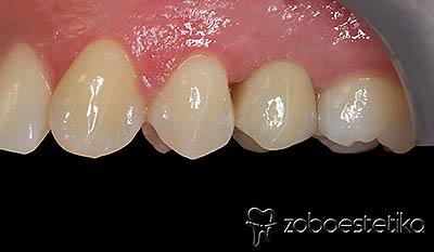 Implantat | cirkon-keramična prevleka sidrana na implantat