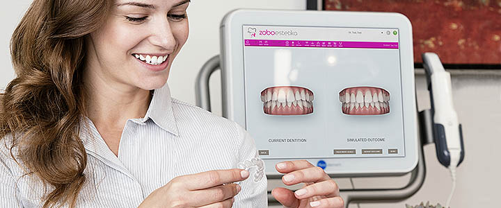 Cena za Invisalign zobni aparat