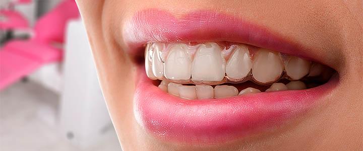 Invisalign ortodont