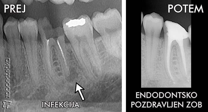 Prej: RTG slika zoba z infekcijo ║ Potem: Enododontsko pozdravljen zob