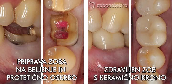 Priprava zoba na beljenje in protetiko ║ Pozdravljen zob s keramično krono