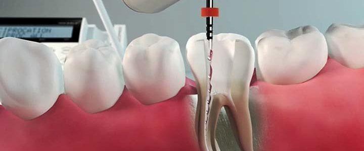 Ali so vam rekli, da za vaš zob ni rešitve?