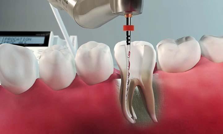 Endodont - Strojno širjenje koreninskih kanalov zob
