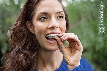 Invisalign nevidni zobni aparati so hitro snemljivi