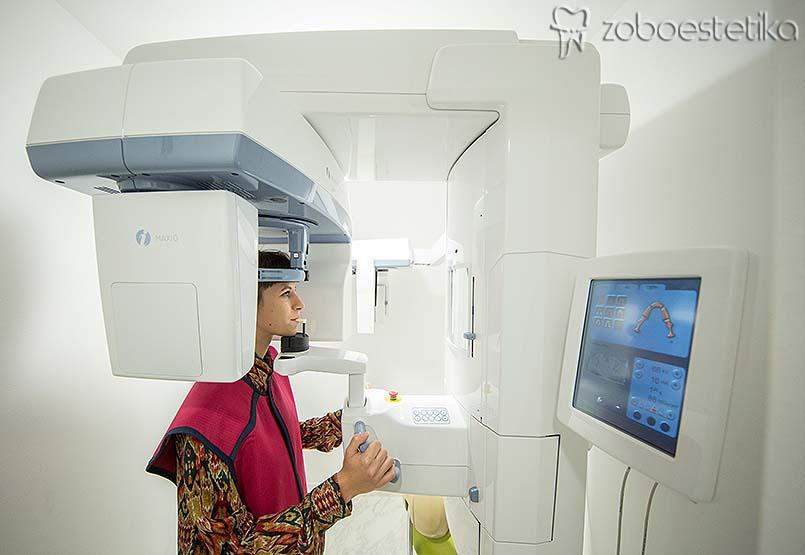 zobni rentgen | rentgensko slikanje zob