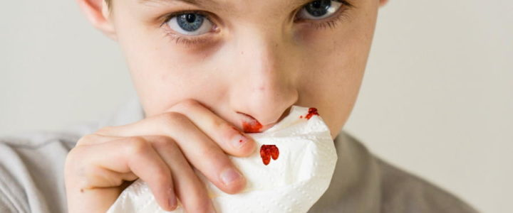 Poškodbe zob